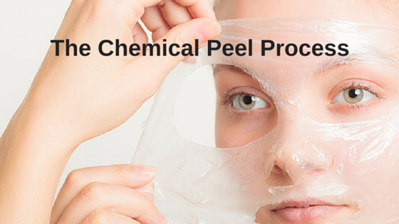 The Chemical Peel Process
