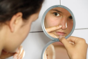 microdermabrasion and acne scars