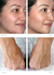 Trophy Skin Portable Microdermabrasion - before and after