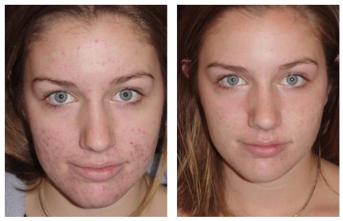 Vernal Age-Defying Advanced Skin Exfoliator Scrub - before and after